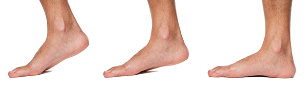 Are Minimalist Shoes Good For Flat Feet